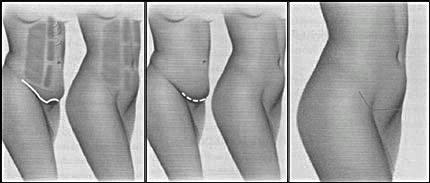 MINI-ABDOMINOPLASTIA